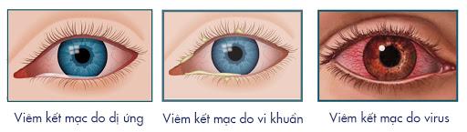 viem-ket-giac-mac