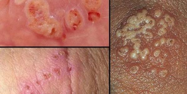 Thông tin về lậu và dấu hiệu mắc bệnh lậu ở nam giới giai đoạn đầu