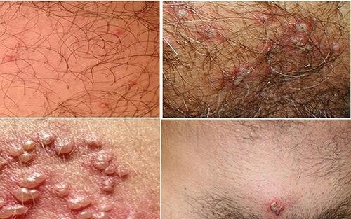 Bệnh mụn rộp sinh dục ở nam giới và cách chữa trị hiệu quả