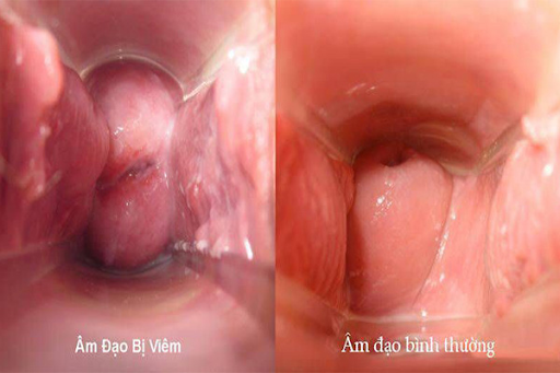Huyết trắng màu nâu đen nguy cơ viêm nhiễm phụ khoa