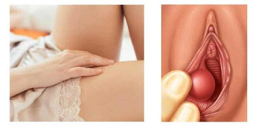 Nổi cục ở vùng kín nữ do viêm âm đạo
